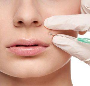 Filler per aumento volume di labbra, zigomi, correzione rughe