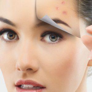 Trattamento acne attiva e cicatrici da acne